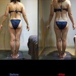 40代女性の痩身コースのビフォーアフター写真